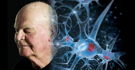 Why Our Brain Cells Die: A Breakthrough in Fighting