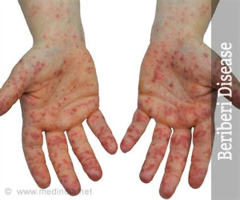 Beriberi Disease - Causes, Risk Factors, Symptoms